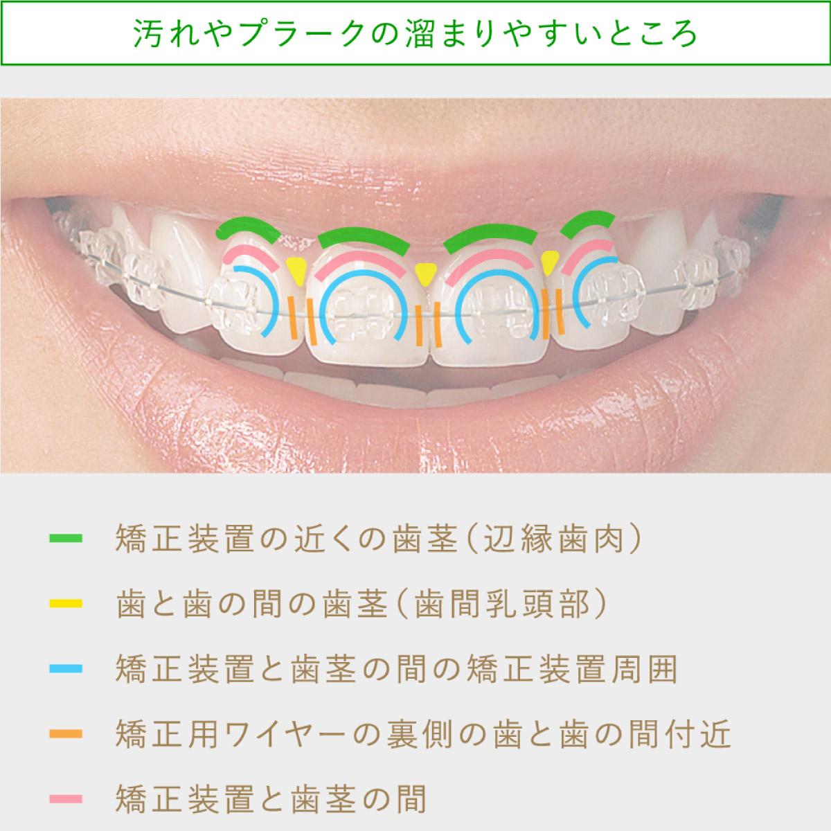 画像:通院毎に定期的な歯磨き指導