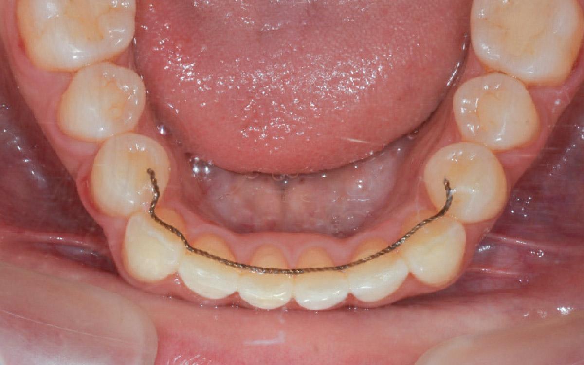画像:歯並びの健康管理を忘れないこと(長期フォローアップ)