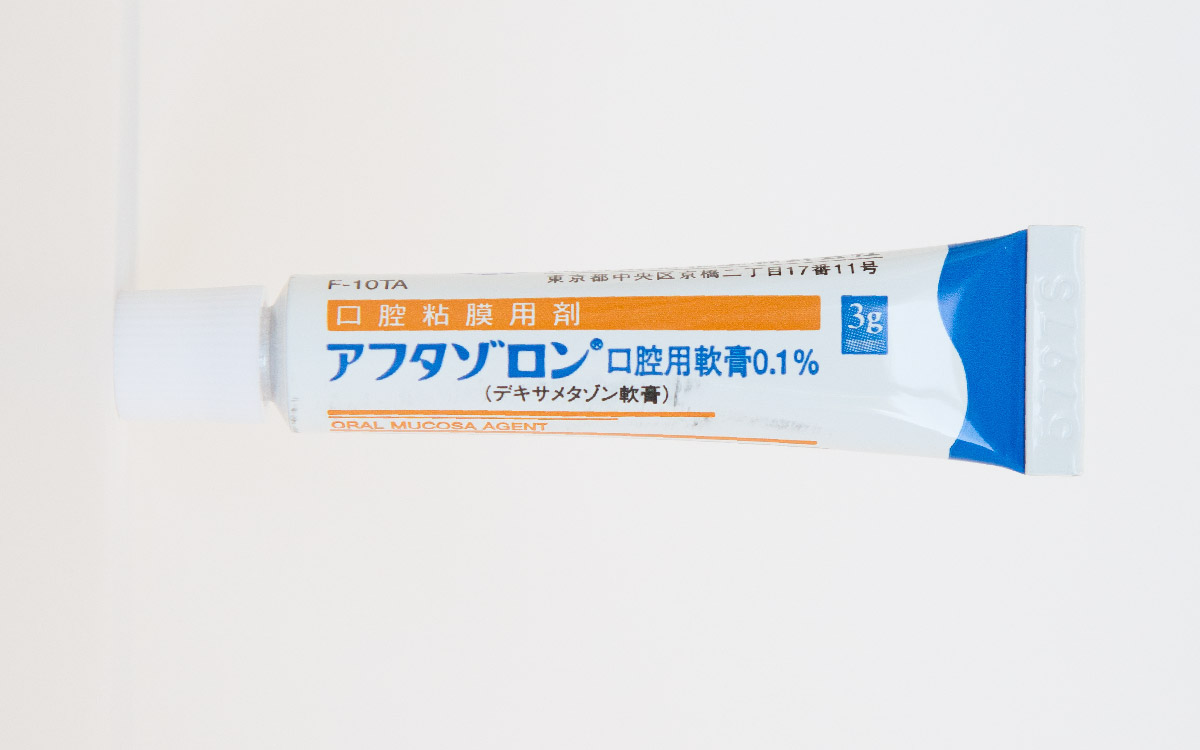 画像:口内炎には軟膏処方と装置の調整